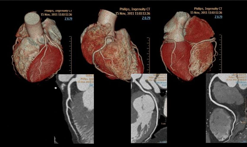 冠動脈(心臓)CT画像