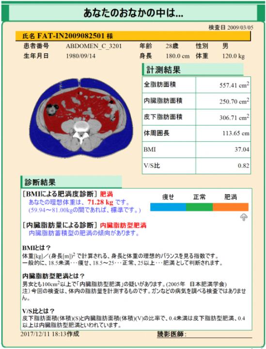 内臓脂肪測定レポート