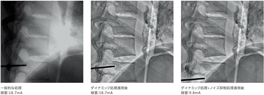 外科用イメージ(2)